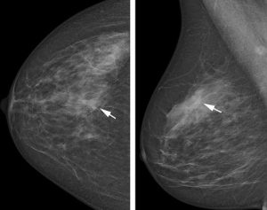 Mammography Benefits Overestimated